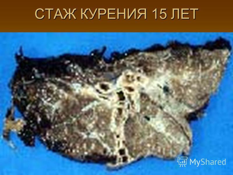 СТАЖ КУРЕНИЯ 15 ЛЕТ