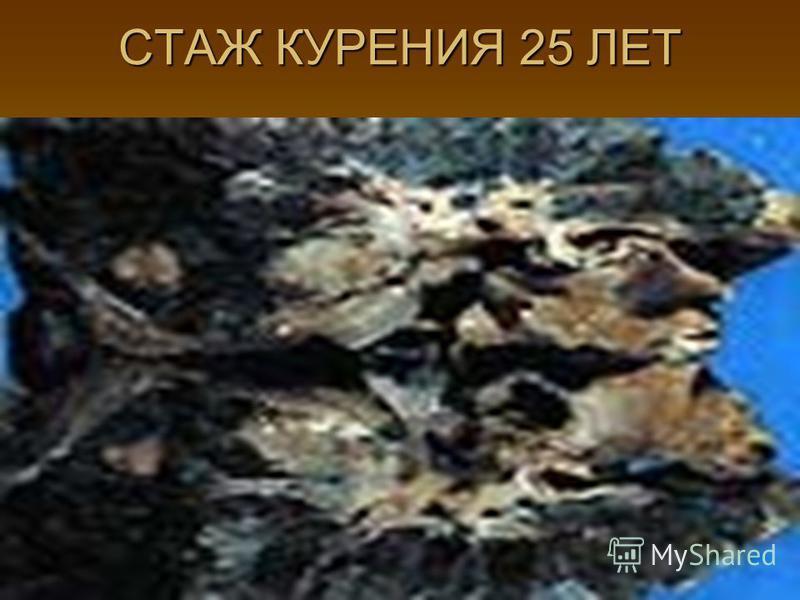 СТАЖ КУРЕНИЯ 25 ЛЕТ