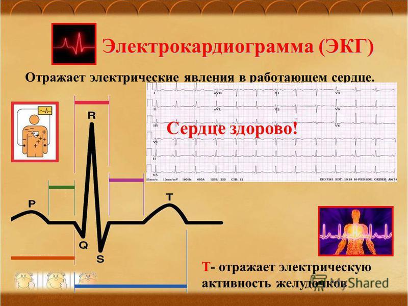 Электрокардиограмма (ЭКГ) Отражает электрические явления в работающем сердце. P- отражает электрическую активность предсердий QRS- отражает электрическую проводимость желудочков Т- отражает электрическую активность желудочков Сердце здорово!