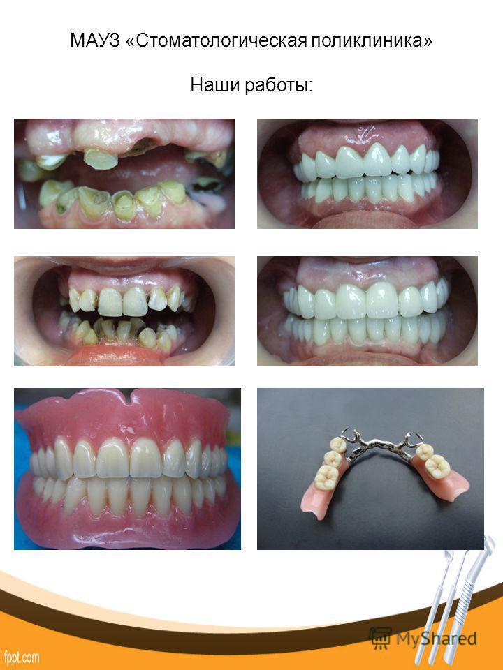 МАУЗ «Стоматологическая поликлиника» Наши работы:
