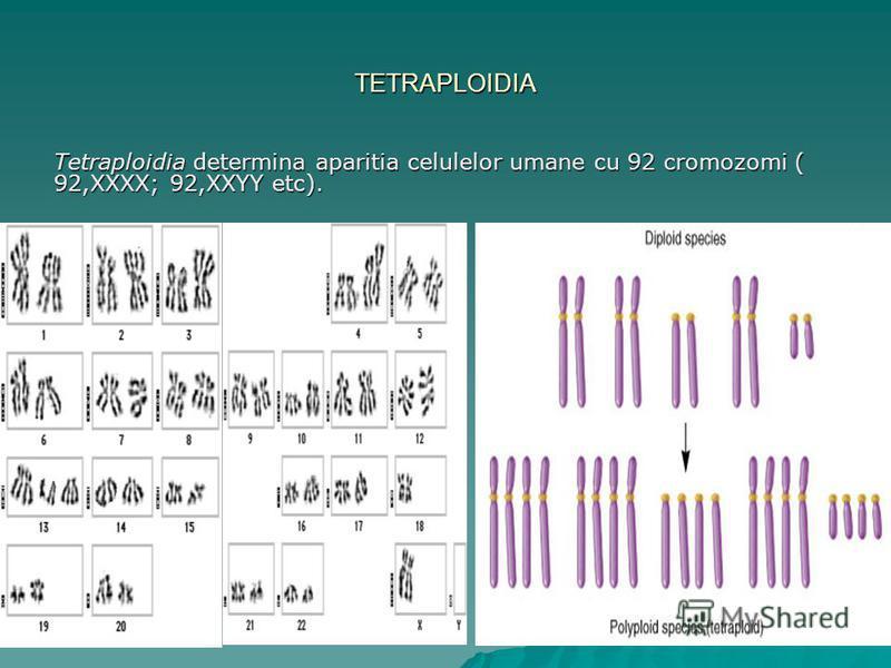 TETRAPLOIDIA Tetraploidia determina aparitia celulelor umane cu 92 cromozomi ( 92,XXXX; 92,XXYY etc).
