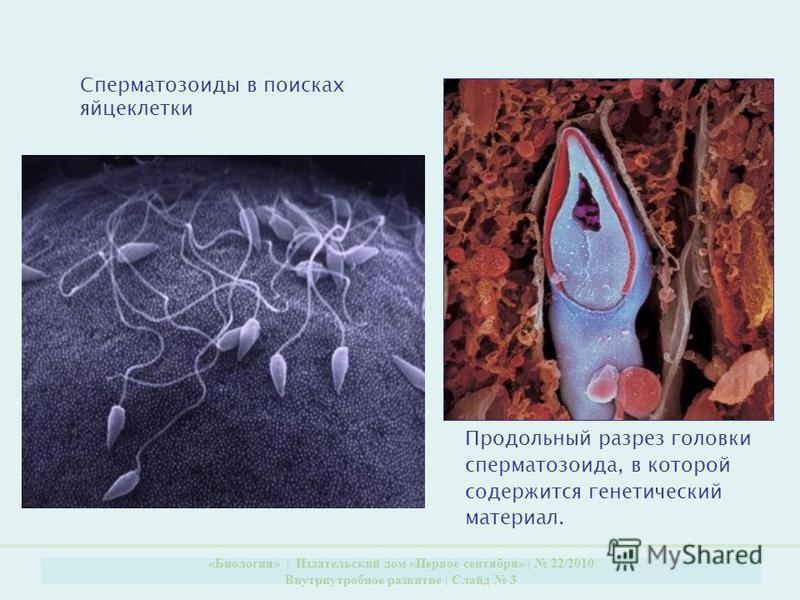 «Биология» | Издательский дом «Первое сентября» | 22/2010 Внутриутробное развитие | Слайд 3 Сперматозоиды в поисках яйцеклетки Продольный разрез головки сперматозоида, в которой содержится генетический материал.