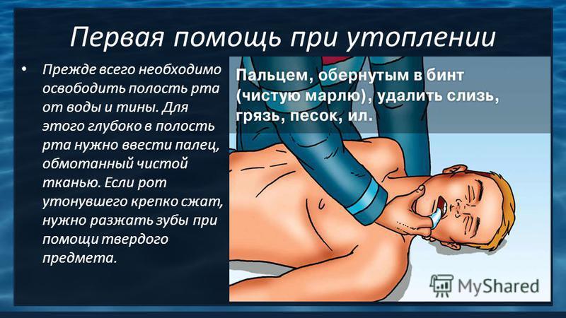 Первая помощь при утоплении Прежде всего необходимо освободить полость рта от воды и тины. Для этого глубоко в полость рта нужно ввести палец, обмотанный чистой тканью. Если рот утонувшего крепко сжат, нужно разжать зубы при помощи твердого предмета.