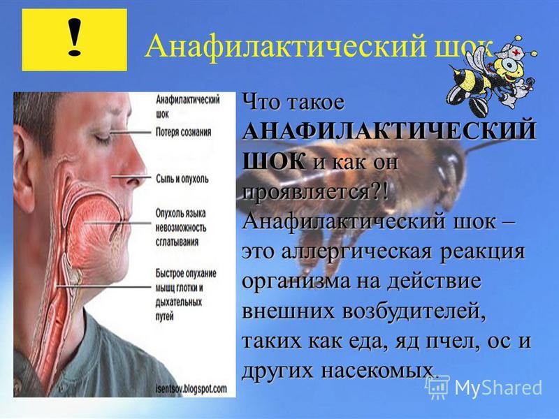 Анафилактический шок Что такое АНАФИЛАКТИЧЕСКИЙ ШОК и как он проявляется?! Анафилактический шок – это аллергическая реакция организма на действие внешних возбудителей, таких как еда, яд пчел, ос и других насекомых Анафилактический шок – это аллергиче