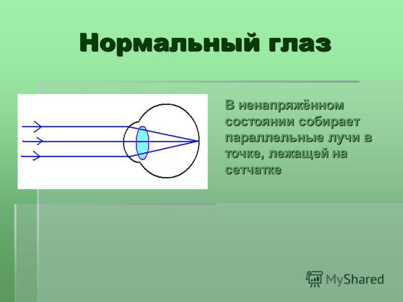 Нормальный глаз В ненапряжённом состоянии собирает параллельные лучи в точке, лежащей на сетчатке