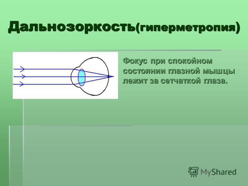 Дальнозоркость (гиперметропия ) Фокус при спокойном состоянии глазной мышцы лежит за сетчаткой глаза.
