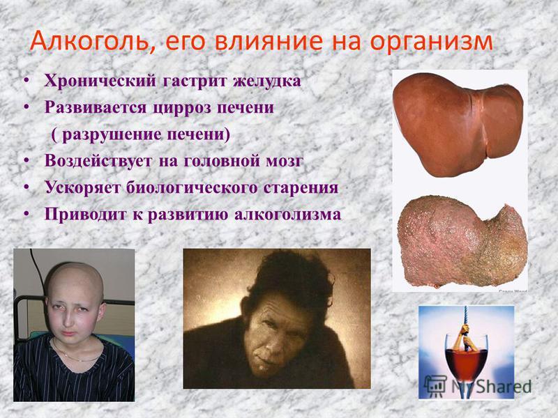 Алкоголь, его влияние на организм Хронический гастрит желудка Развивается цирроз печени ( разрушение печени) Воздействует на головной мозг Ускоряет биологического старения Приводит к развитию алкоголизма