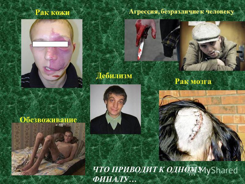 Агрессия, безразличие к человеку Рак кожи Дебилизм Рак мозга Обезвоживание ЧТО ПРИВОДИТ К ОДНОМУ ФИНАЛУ…