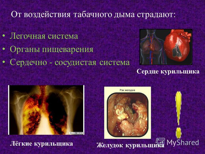 От воздействия табачного дыма страдают: Легочная система Органы пищеварения Сердечно - сосудистая система Лёгкие курильщика Желудок курильщика Сердце курильщика