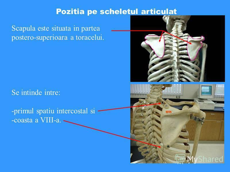 Pozitia pe scheletul articulat Scapula este situata in partea postero-superioara a toracelui. Se intinde intre: -primul spatiu intercostal si -coasta a VIII-a.