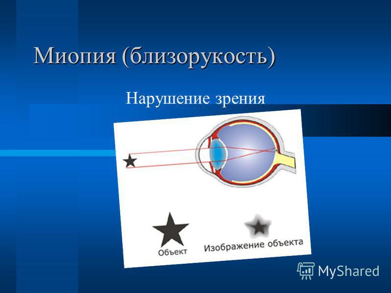 Миопия (близорукость) Нарушение зрения