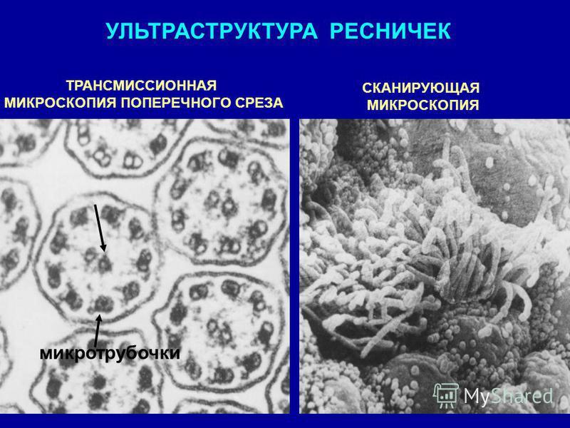 УЛЬТРАСТРУКТУРА РЕСНИЧЕК ТРАНСМИССИОННАЯ МИКРОСКОПИЯ ПОПЕРЕЧНОГО СРЕЗА СКАНИРУЮЩАЯ МИКРОСКОПИЯ микротрубочки