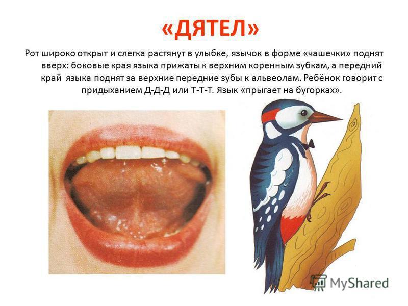 «ДЯТЕЛ» Рот широко открыт и слегка растянут в улыбке, язычок в форме «чашечки» поднят вверх: боковые края языка прижаты к верхним коренным зубкам, а передний край языка поднят за верхние передние зубы к альвеолам. Ребёнок говорит с придыханием Д-Д-Д