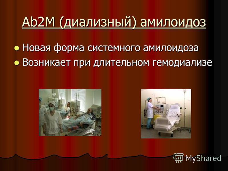 Ab2M (диализный) амилоидоз Новая форма системного амилоидоза Новая форма системного амилоидоза Возникает при длительном гемодиализе Возникает при длительном гемодиализе