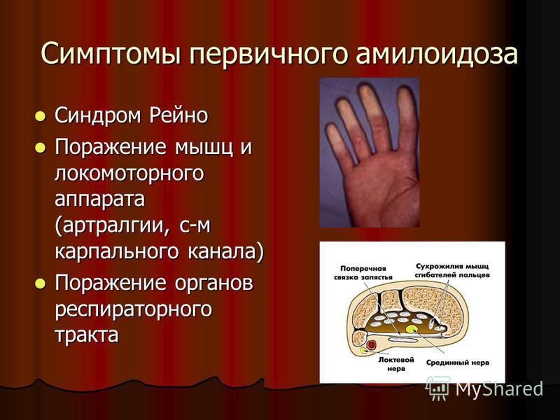 Симптомы первичного амилоидоза Синдром Рейно Синдром Рейно Поражение мышц и локомоторного аппарата (артралгии, с-м карпального канала) Поражение мышц и локомоторного аппарата (артралгии, с-м карпального канала) Поражение органов респираторного тракта