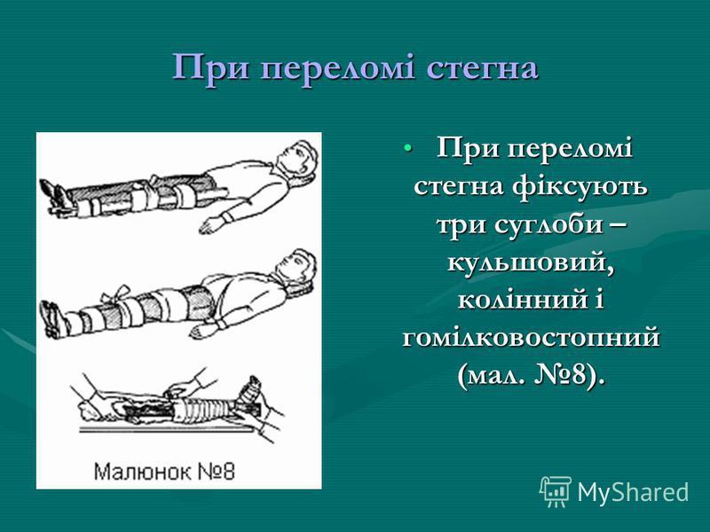 При переломі стегна При переломі стегна фіксують три суглоби – кульшовий, колінний і гомілковостопний (мал. 8).