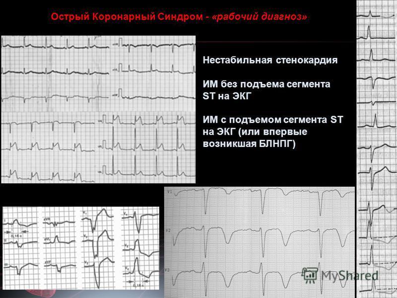 Нестабильная стенокардия ИМ без подъема сегмента ST на ЭКГ ИМ с подъемом сегмента ST на ЭКГ (или впервые возникшая БЛНПГ) Острый Коронарный Синдром - «рабочий диагноз»