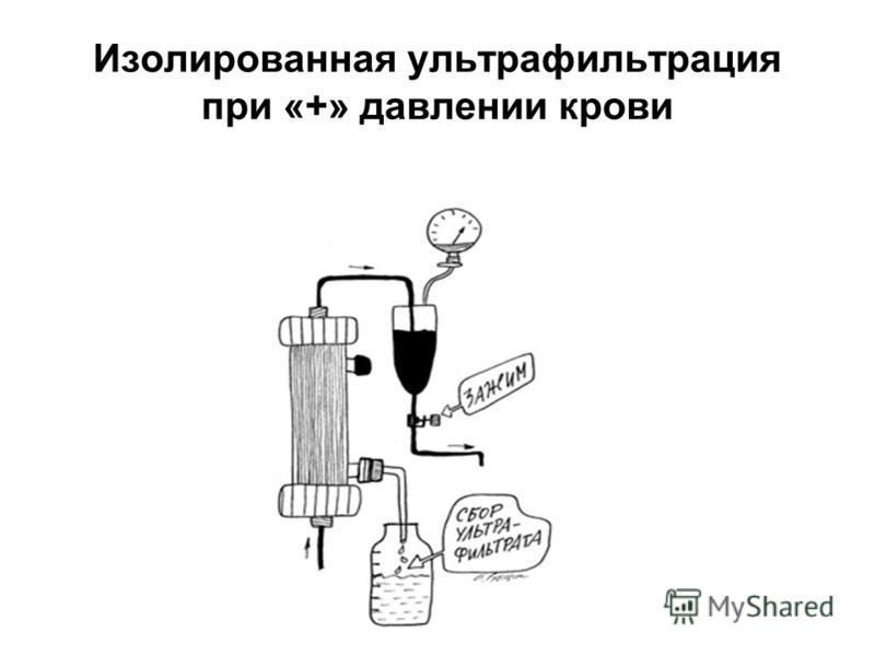 Изолированная ультрафильтрация при «+» давлении крови