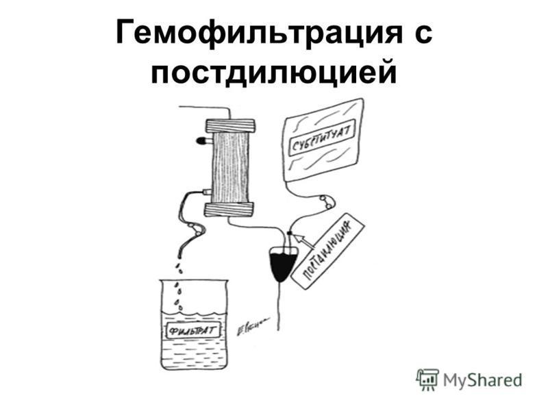 Гемофильтрация с постдилюцией