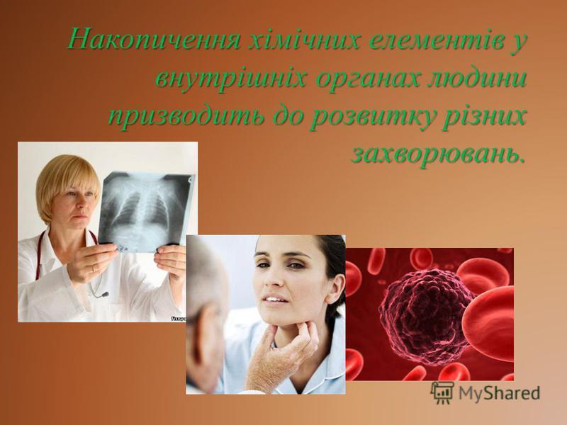 Накопичення хімічних елементів у внутрішніх органах людини призводить до розвитку різних захворювань.