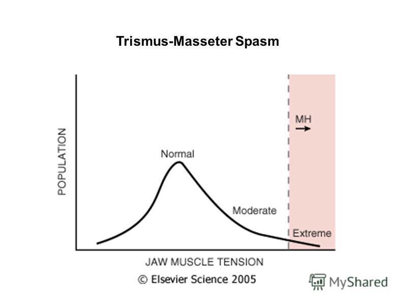 Trismus-Masseter Spasm