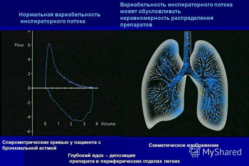 Нормальная вариабельность инспираторного потока Вариабельность инспираторного потока может обусловливать неравномерность распределения препаратов Спирометрические кривые у пациента с бронхиальной астмой Схематическое изображение Глубокий вдох – депоз