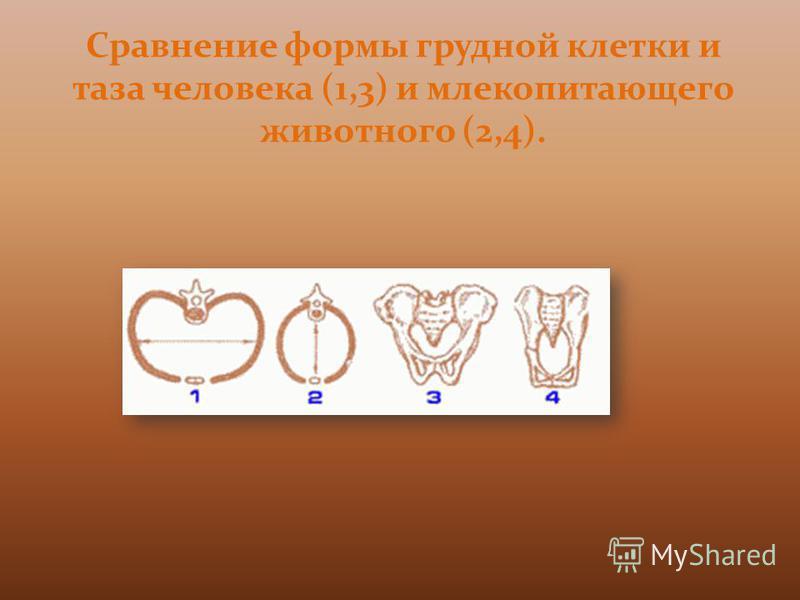 Сравнение формы грудной клетки и таза человека (1,3) и млекопитающего животного (2,4).