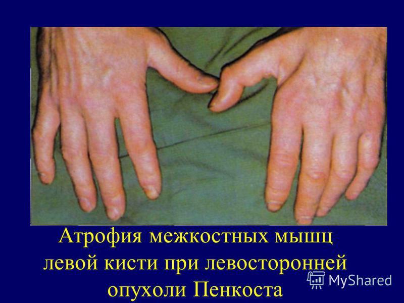 Атрофия межкостных мышц левой кисти при левосторонней опухоли Пенкоста