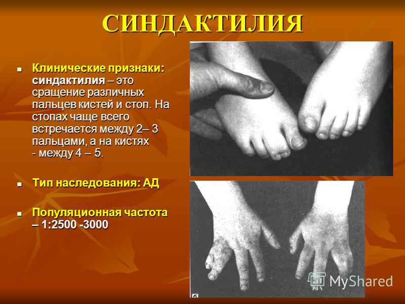 СИНДАКТИЛИЯ Клинические признаки: синдактилия – это сращение различных пальцев кистей и стоп. На стопах чаще всего встречается между 2– 3 пальцами, а на кистях - между 4 – 5. Клинические признаки: синдактилия – это сращение различных пальцев кистей и
