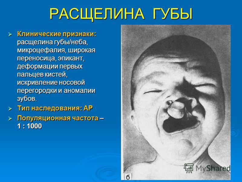 РАСЩЕЛИНА ГУБЫ Клинические признаки: расщелина губы/неба, микроцефалия, широкая переносица, эпикант, деформации первых пальцев кистей, искривление носовой перегородки и аномалии зубов. Клинические признаки: расщелина губы/неба, микроцефалия, широкая