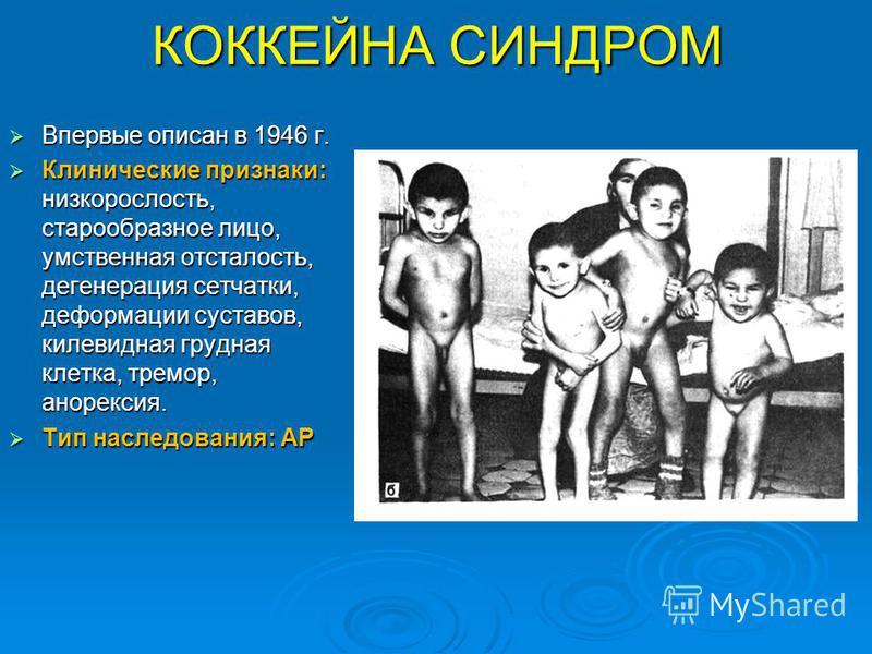 КОККЕЙНА СИНДРОМ Впервые описан в 1946 г. Впервые описан в 1946 г. Клинические признаки: низкорослость, старообразное лицо, умственная отсталость, дегенерация сетчатки, деформации суставов, килевидная грудная клетка, тремор, анорексия. Клинические пр
