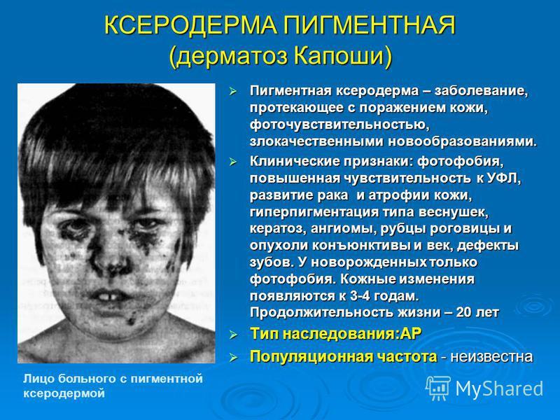 КСЕРОДЕРМА ПИГМЕНТНАЯ (дерматоз Капоши) Пигментная ксеродерма – заболевание, протекающее с поражением кожи, фоточувствительностью, злокачественными новообразованиями. Пигментная ксеродерма – заболевание, протекающее с поражением кожи, фоточувствитель