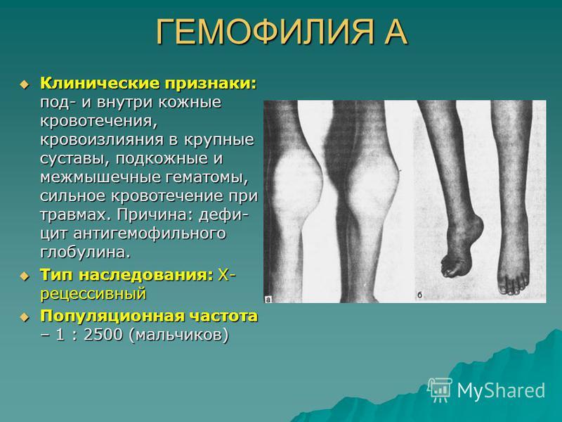 ГЕМОФИЛИЯ А Клинические признаки: под- и внутри кожные кровотечения, кровоизлияния в крупные суставы, подкожные и межмышечные гематомы, сильное кровотечение при травмах. Причина: дефи- цит антигемофильного глобулина. Клинические признаки: под- и внут