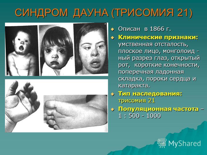 СИНДРОМ ДАУНА (ТРИСОМИЯ 21) Описан в 1866 г. Описан в 1866 г. Клинические признаки: умственная отсталость, плоское лицо, монголоид - ный разрез глаз, открытый рот, короткие конечности, поперечная ладонная складка, пороки сердца и катаракта. Клиническ