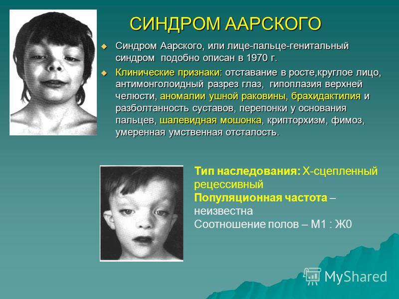 СИНДРОМ ААРСКОГО Синдром Аарского, или лице-пальце-генитальный синдром подобно описан в 1970 г. Синдром Аарского, или лице-пальце-генитальный синдром подобно описан в 1970 г. Клинические признаки: отставание в росте,круглое лицо, антимонголоидный раз