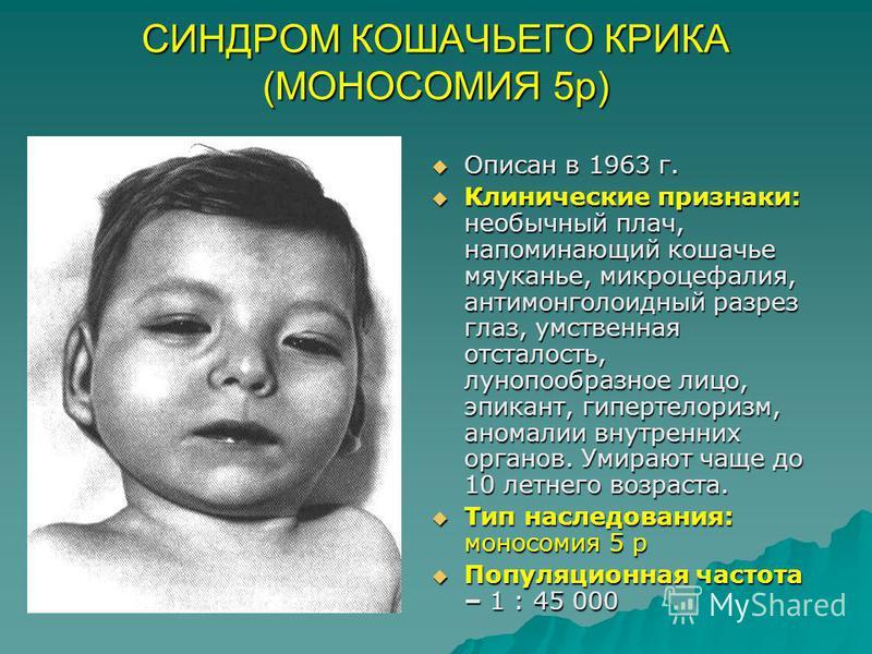 СИНДРОМ КОШАЧЬЕГО КРИКА (МОНОСОМИЯ 5 р) Описан в 1963 г. Описан в 1963 г. Клинические признаки: необычный плач, напоминающий кошачье мяуканье, микроцефалия, антимонголоидный разрез глаз, умственная отсталость, лунопообразное лицо, эпикант, гипертелор
