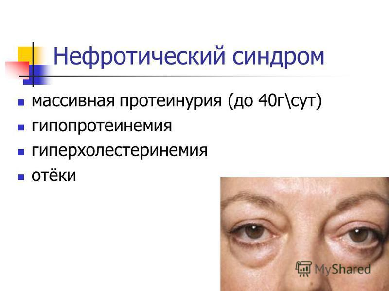 Нефротический синдром массивная протеинурия (до 40 г\сут) гипопротеинемия гиперхолестеринемия отёки