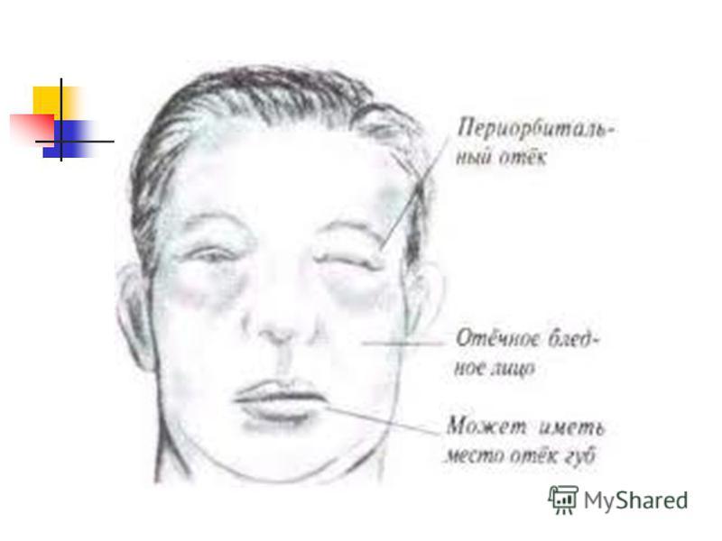 Анемия при ревматоидном артрите причины