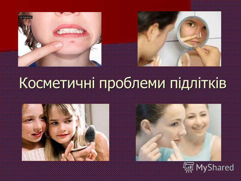 Косметичні проблеми підлітків