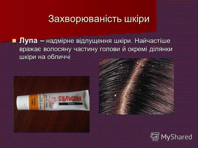 Захворюваність шкіри Лупа – надмірне відлущення шкіри. Найчастіше вражає волосяну частину голови й окремі ділянки шкіри на обличчі Лупа – надмірне відлущення шкіри. Найчастіше вражає волосяну частину голови й окремі ділянки шкіри на обличчі