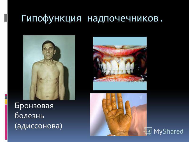 Гипофункция надпочечников. Бронзовая болезнь (аддисонова)