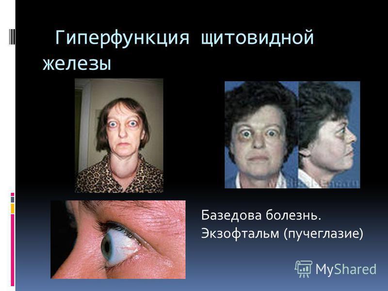 Гиперфункция щитовидной железы Базедова болезнь. Экзофтальм (пучеглазие)