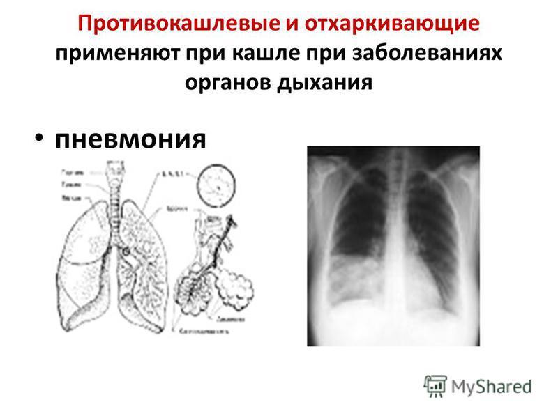 Противокашлевые и отхаркивающие применяют при кашле при заболеваниях органов дыхания пневмония