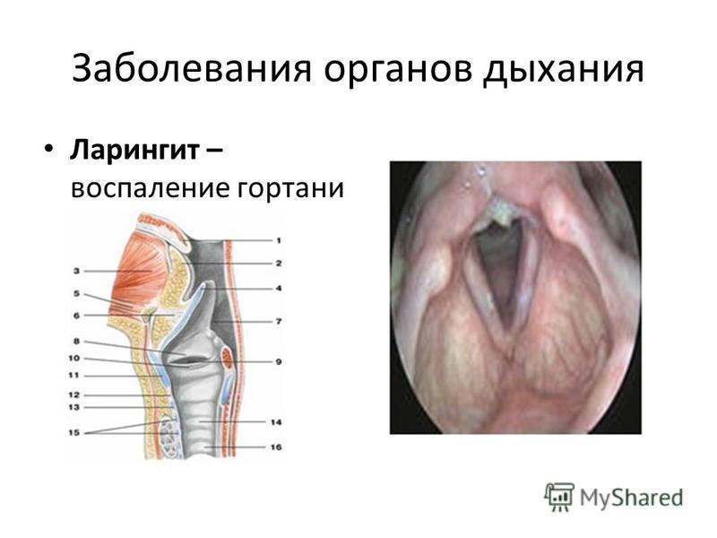Заболевания органов дыхания Ларингит – воспаление гортани