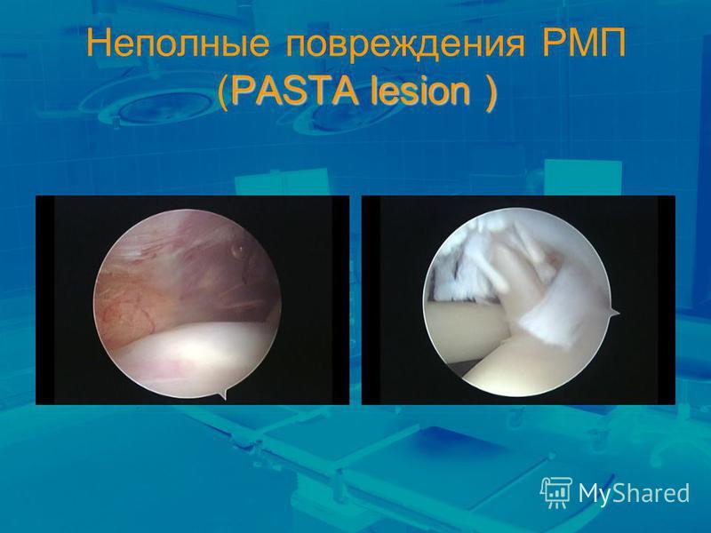 PASTA lesion ) Неполные повреждения РМП (PASTA lesion )
