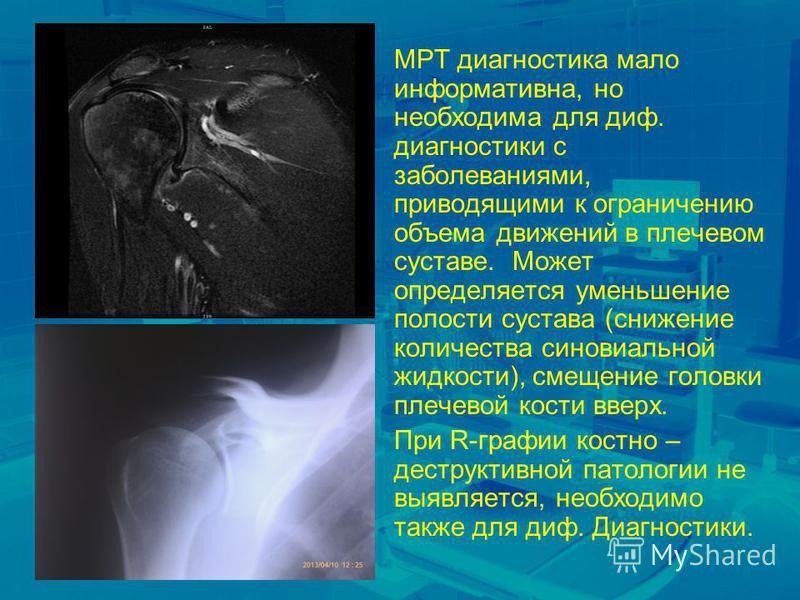 МРТ диагностика мало информативна, но необходима для диф. диагностики с заболеваниями, приводящими к ограничению объема движений в плечевом суставе. Может определяется уменьшение полости сустава (снижение количества синовиальной жидкости), смещение г