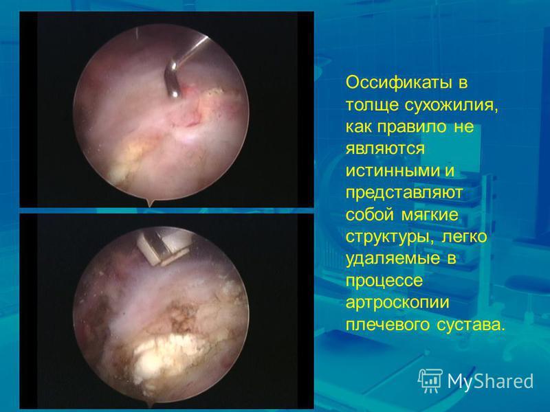 Оссификаты в толще сухожилия, как правило не являются истинными и представляют собой мягкие структуры, легко удаляемые в процессе артроскопии плечевого сустава.
