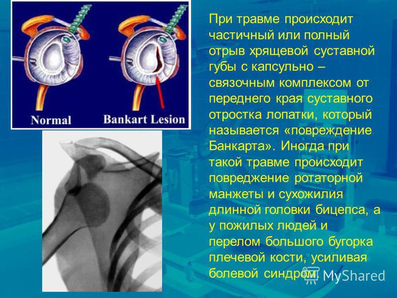 При травме происходит частичный или полный отрыв хрящевой суставной губы с капсульно – связочным комплексом от переднего края суставного отростка лопатки, который называется «повреждение Банкарта». Иногда при такой травме происходит повреждение ротат