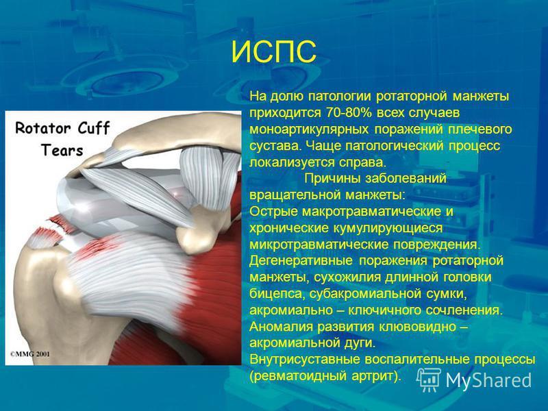 ИСПС На долю патологии ротаторной манжеты приходится 70-80% всех случаев моноартикулярных поражений плечевого сустава. Чаще патологический процесс локализуется справа. Причины заболеваний вращательной манжеты: Острые макро травматические и хронически