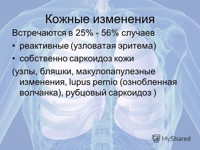 Кожные изменения Встречаются в 25% - 56% случаев реактивные (узловатая эритема) собственно саркоидоз кожи (узлы, бляшки, макулопапулезные изменения, lupus pernio (ознобленная волчанка), рубцовый саркоидоз )